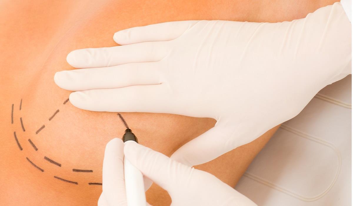 Przygotowanie do zabiegu powiększania piersi kwasem hialuronowym